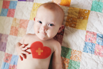 willow before heart surgery, infant with down syndrome, in services at TARC, birth to three services